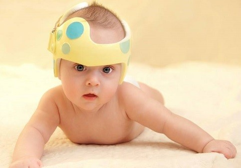 casco para plagiocefalia postural